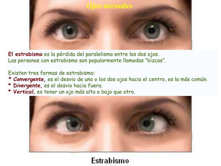 Ojos normales