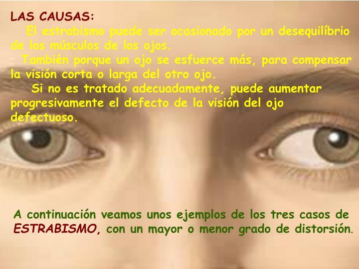 LAS CAUSAS: