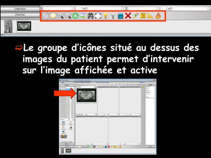 Le groupe d'icônes situé au dessus des images du patient permet d'intervenir sur l'image affichée et active