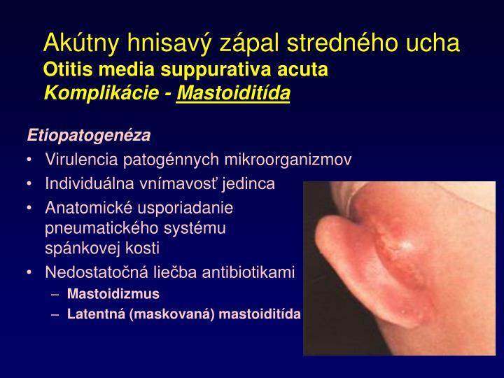 Akútny hnisavý zápal stredného ucha