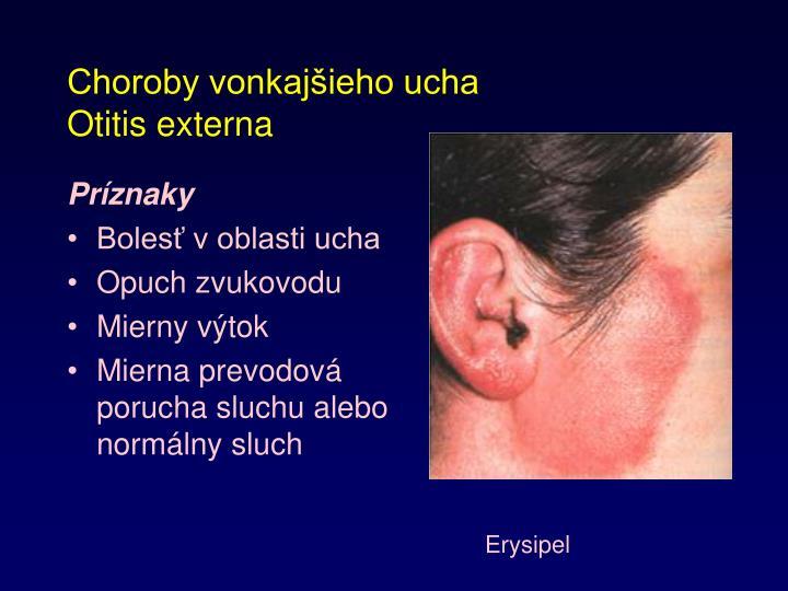Choroby vonkajšieho ucha