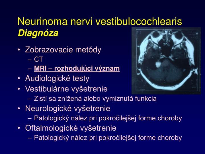 Neurinoma nervi vestibulocochlearis