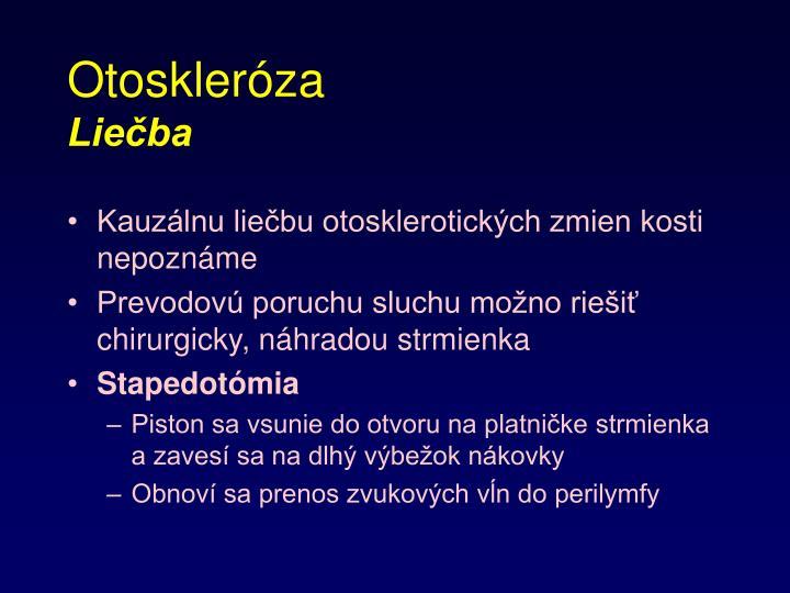 Otoskleróza
