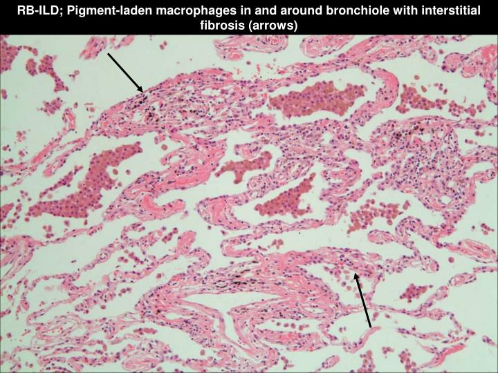 RB-ILD; Pigment-laden macrophages in and around bronchiole with interstitial fibrosis (arrows)