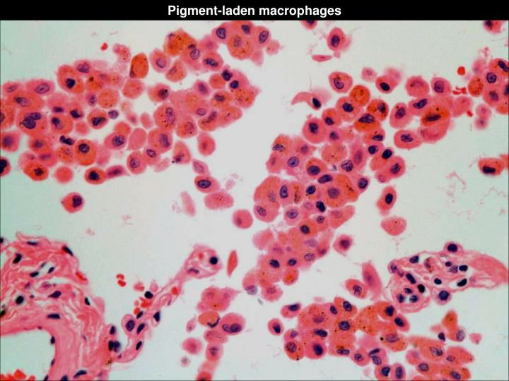 Pigment-laden macrophages