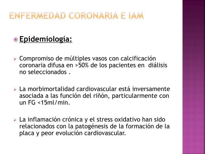 ENFERMEDAD CORONARIA E