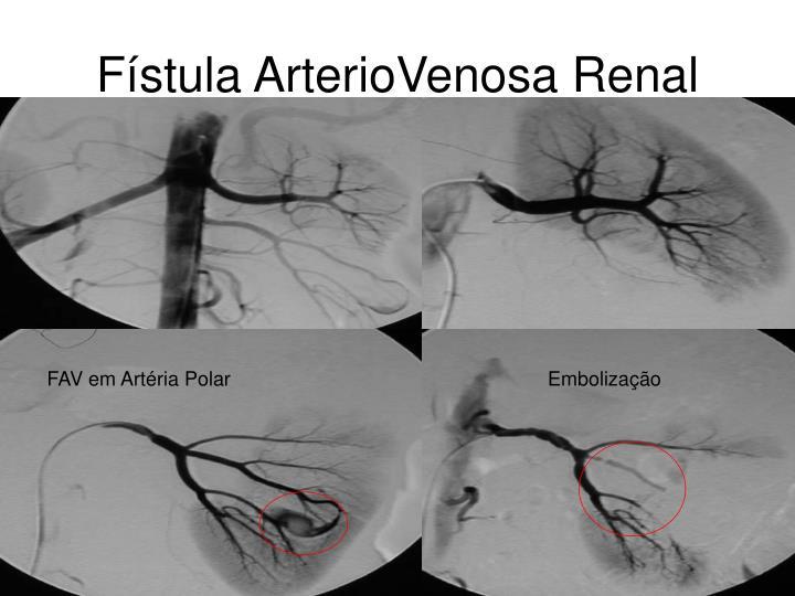 Fístula ArterioVenosa Renal