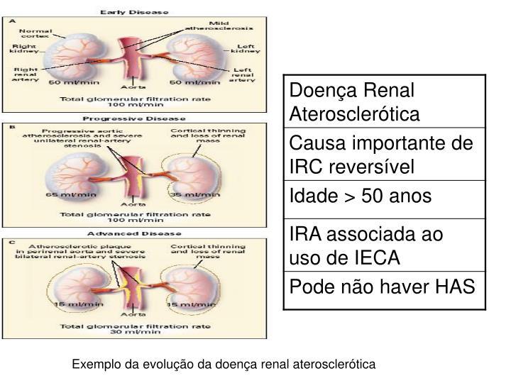 Exemplo da evolução da doença renal aterosclerótica