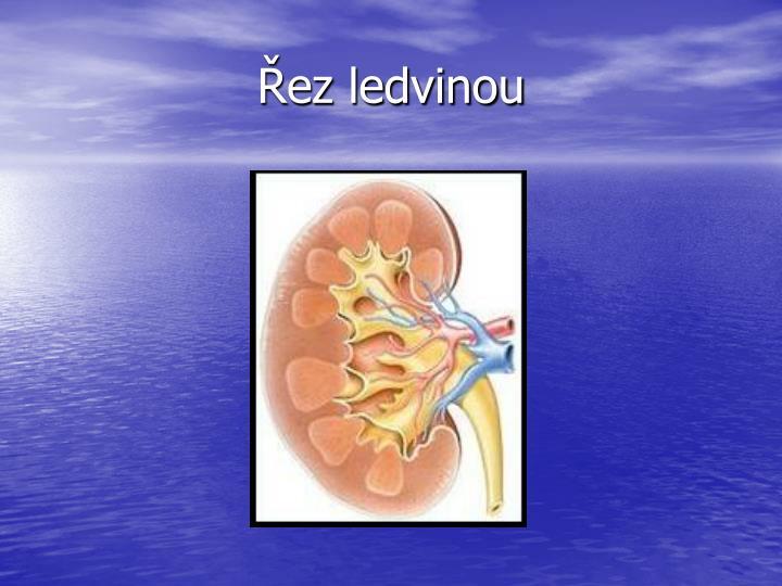 Řez ledvinou