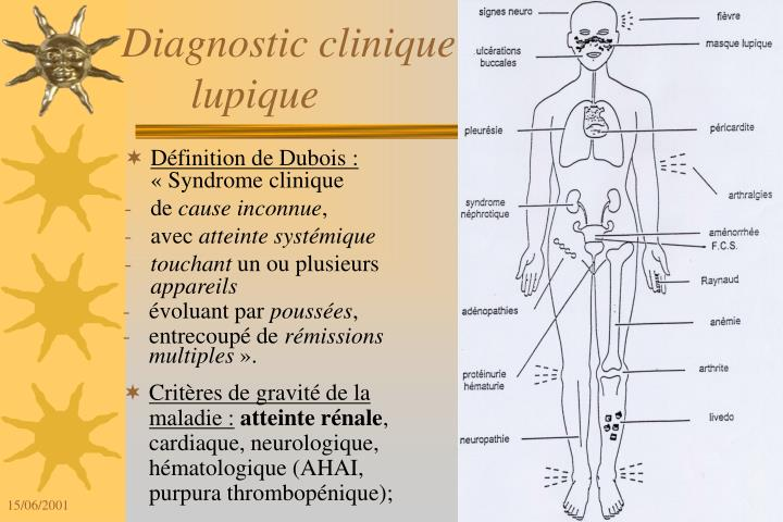 Diagnostic clinique de la maladie lupique