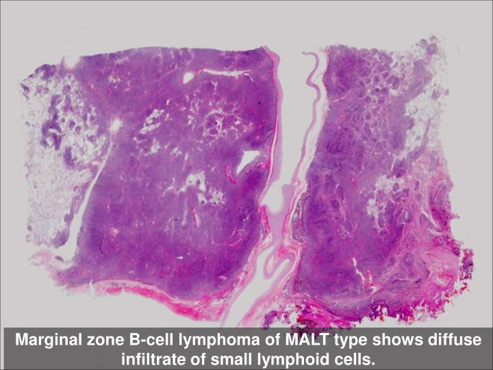 Marginal zone B-cell lymphoma of MALT type shows diffuse infiltrate of small lymphoid cells.