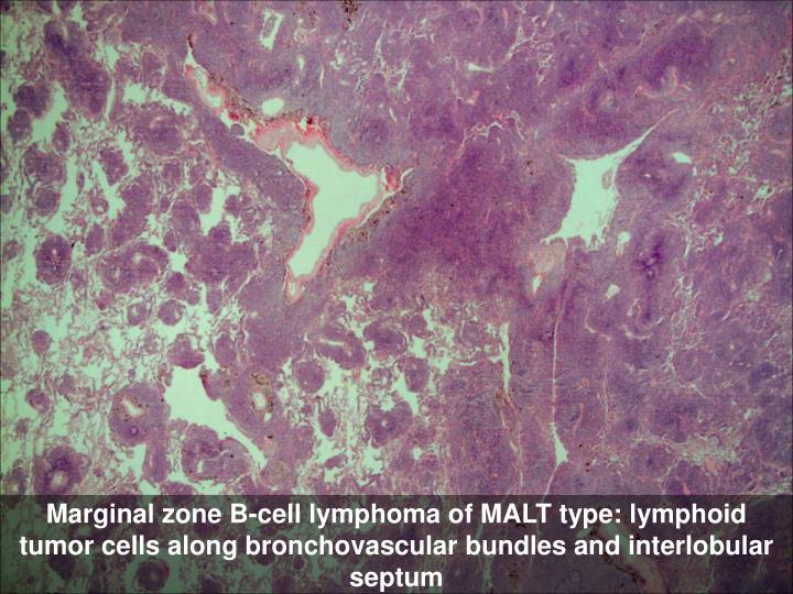 Marginal zone B-cell lymphoma of MALT type: lymphoid tumor cells along bronchovascular bundles and interlobular septum