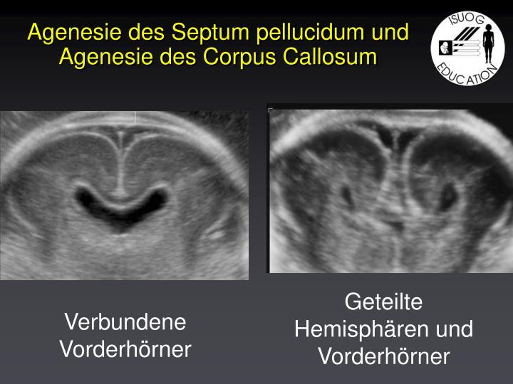 Agenesie des Septum pellucidum und Agenesie des Corpus Callosum