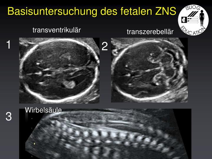 Basisuntersuchung des fetalen ZNS