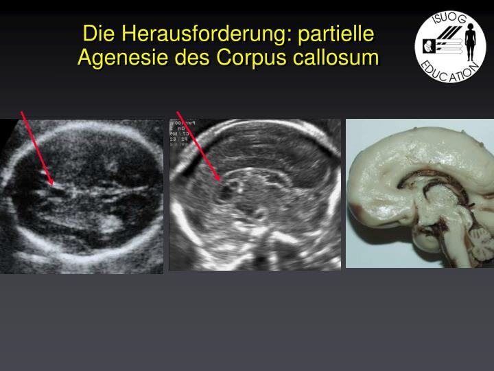 Die Herausforderung: partielle Agenesie des Corpus callosum