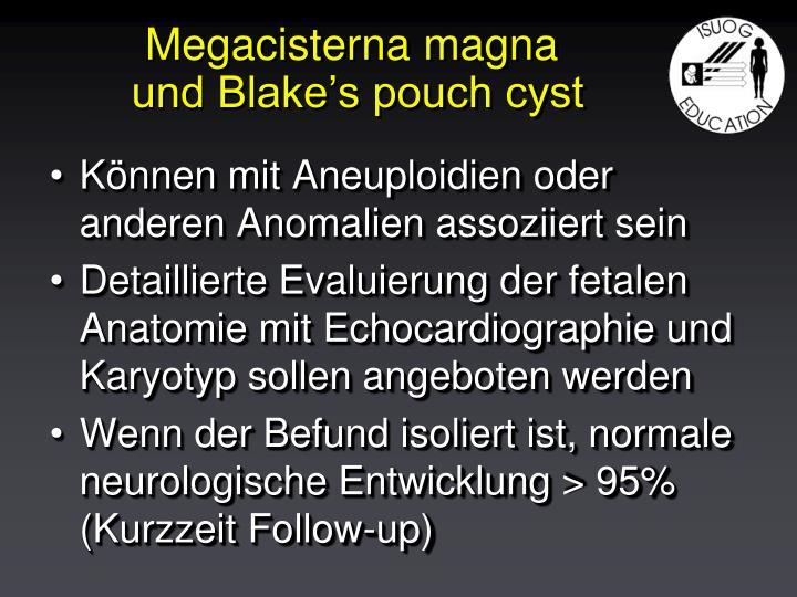 Megacisterna magna