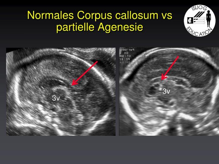 Normales Corpus callosum vs partielle Agenesie