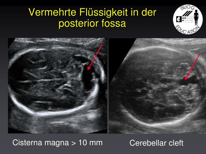 Cisterna magna > 10 mm