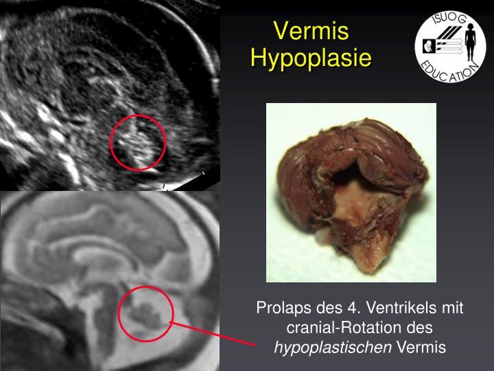 Prolaps des 4. Ventrikels mit cranial-Rotation des