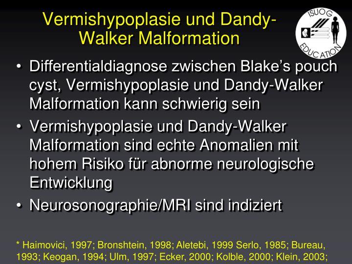 Vermishypoplasie und Dandy-Walker Malformation