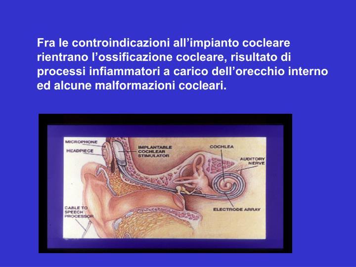 Fra le controindicazioni all'impianto cocleare rientrano l'ossificazione cocleare, risultato di processi infiammatori a carico dell'orecchio interno ed alcune malformazioni cocleari.