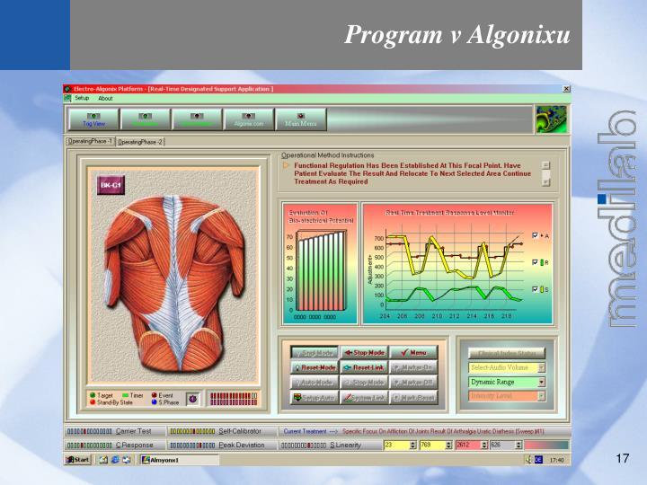 Program v Algonixu