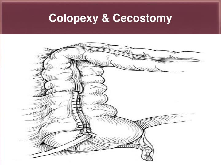 Colopexy & Cecostomy