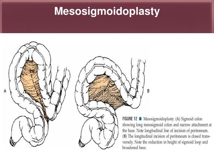 Mesosigmoidoplasty