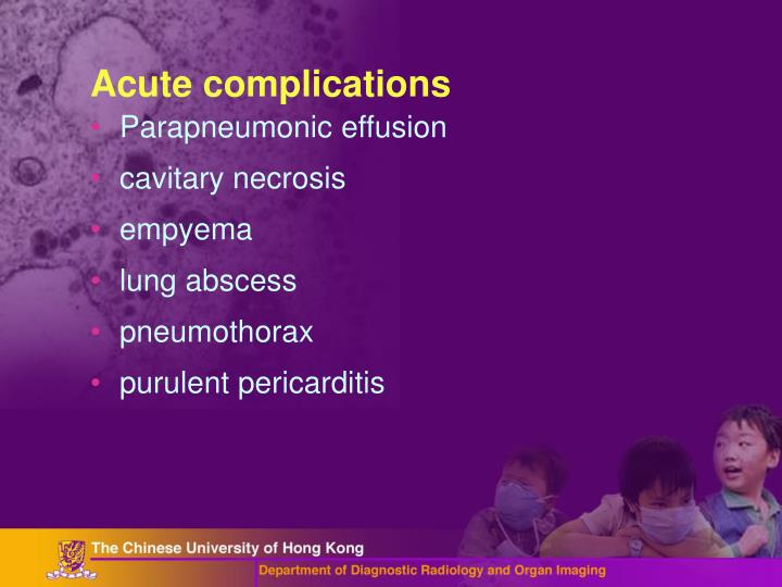 Acute complications