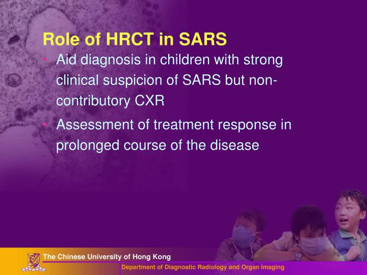 Role of HRCT in SARS
