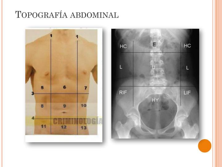 Topografía abdominal
