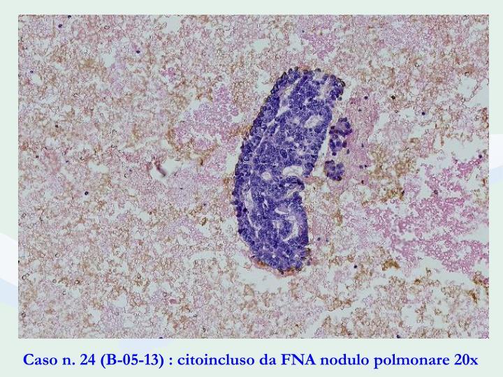Caso n. 24 (B-05-13) : citoincluso da FNA nodulo polmonare 20x