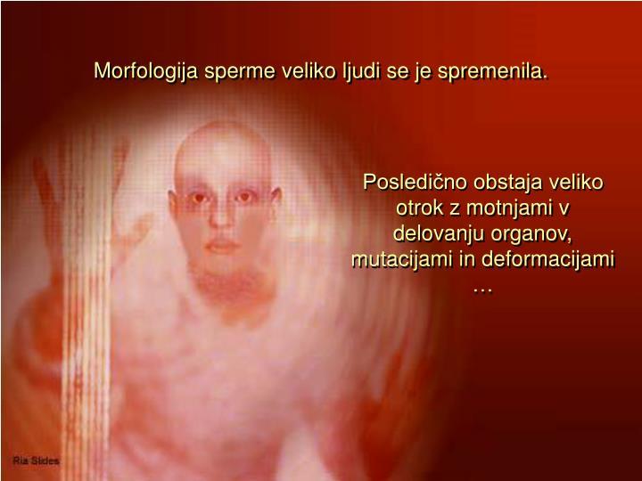 Morfologija sperme veliko ljudi se je spremenila.