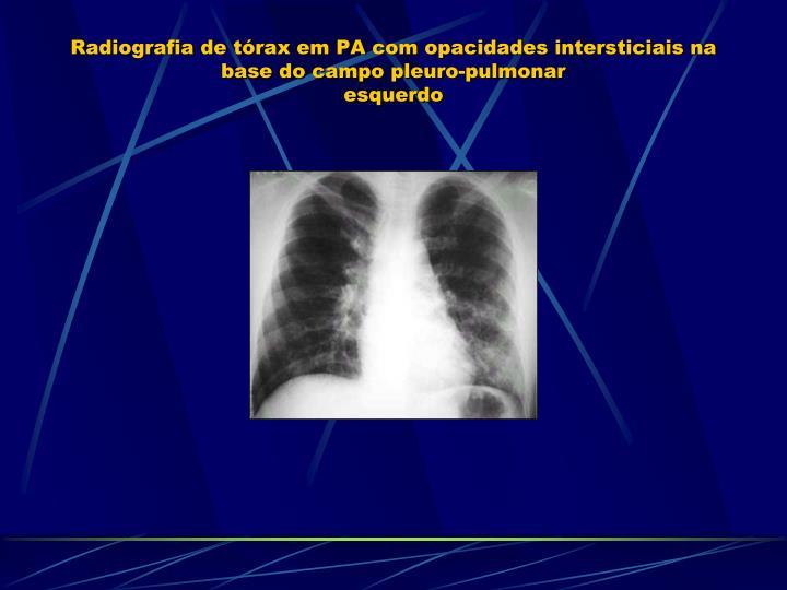 Radiografia de tórax em PA com opacidades intersticiais na base do campo