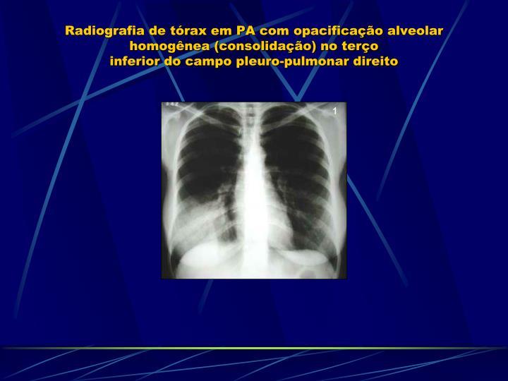 Radiografia de tórax em PA com