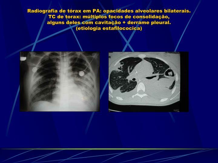 Radiografia de tórax em