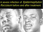 a severe infection of epidermophyton floccosum before and after treatment