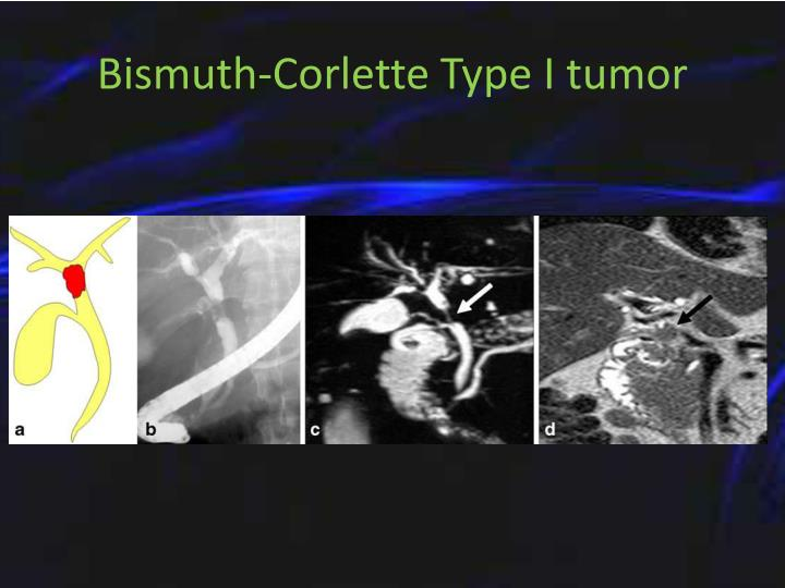 Bismuth-Corlette Type I tumor