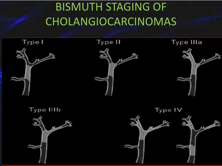 BISMUTH STAGING OF CHOLANGIOCARCINOMAS