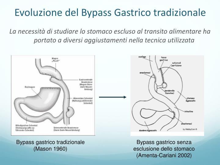 Evoluzione del Bypass Gastrico tradizionale