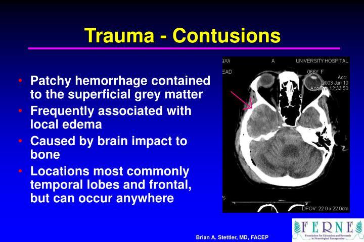 Trauma - Contusions