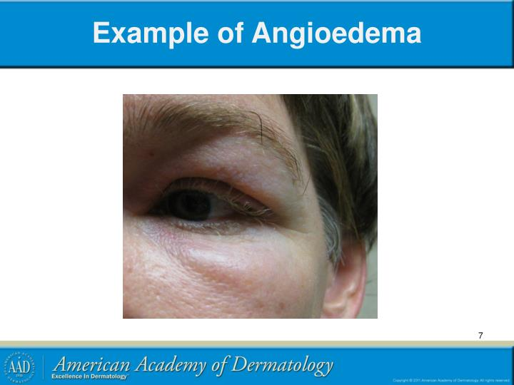 Example of Angioedema