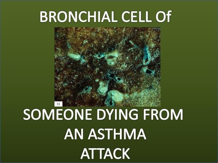 BRONCHIAL
