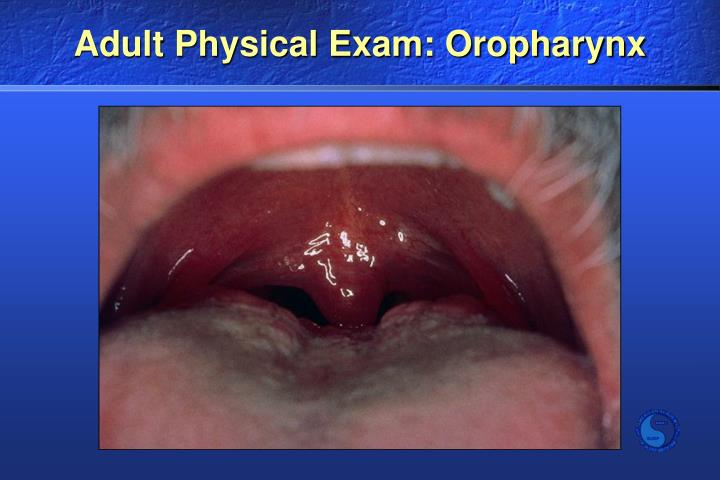 Adult Physical Exam: Oropharynx