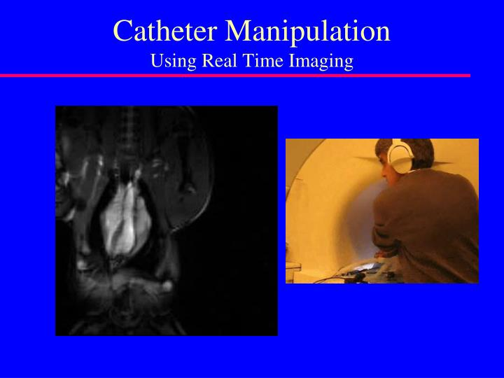 Catheter Manipulation
