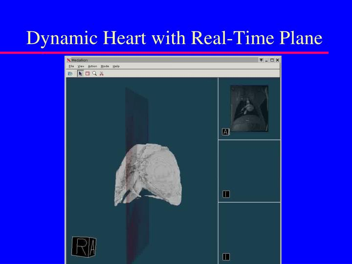 Dynamic Heart with Real-Time Plane