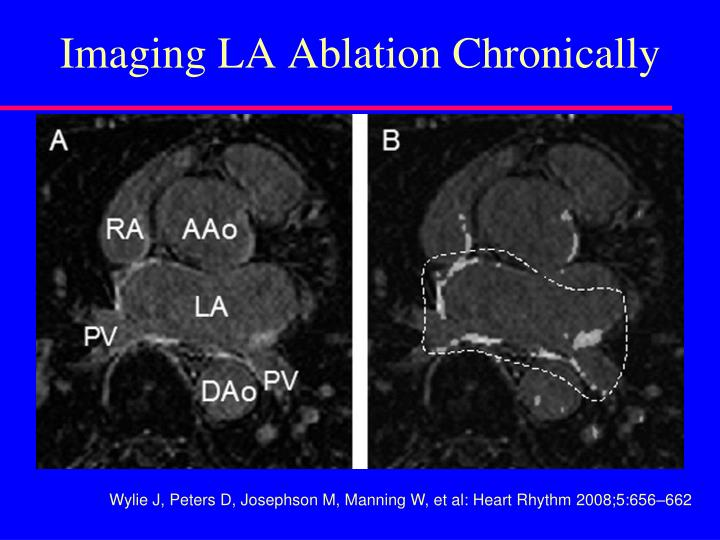 Imaging LA Ablation Chronically