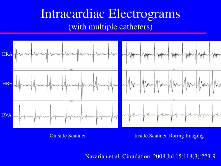 Intracardiac Electrograms