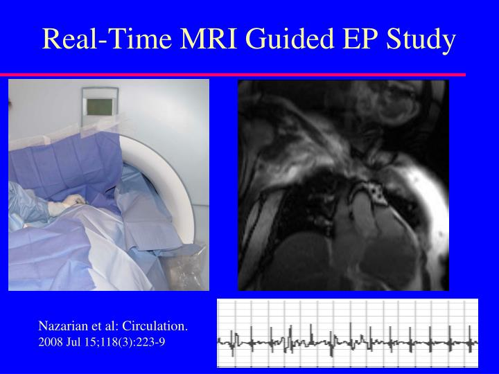 Real-Time MRI Guided EP Study
