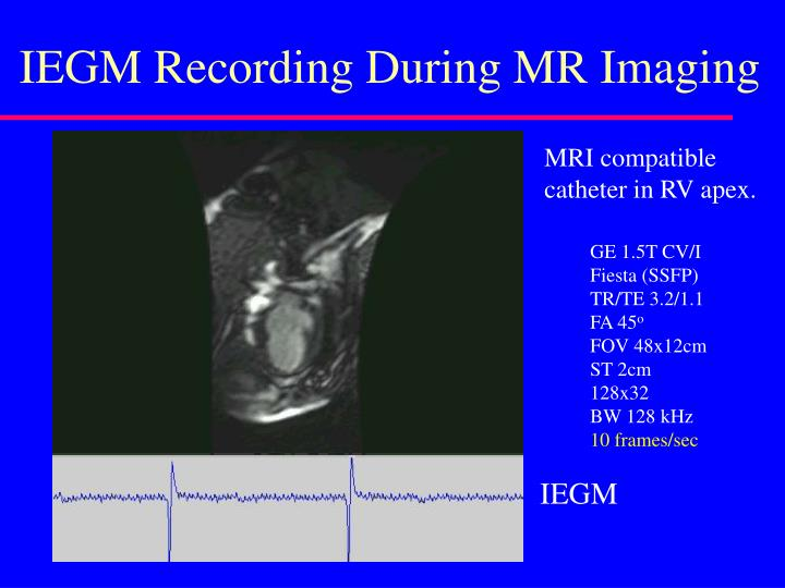 IEGM Recording During MR Imaging